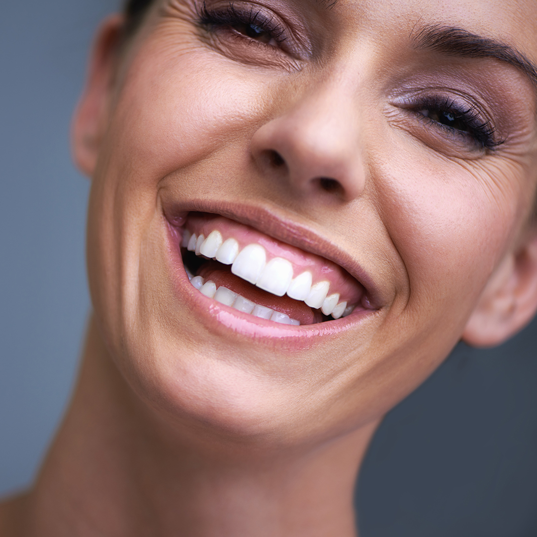 Who is the ideal patient for teeth whitening?