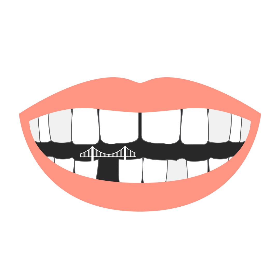 Don't Mind The Gap – Build A (Dental) Bridge