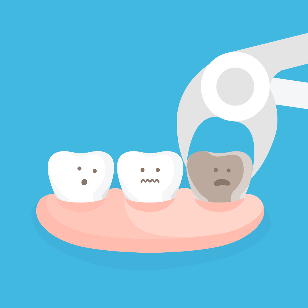how to take care of a wisdom tooth extraction