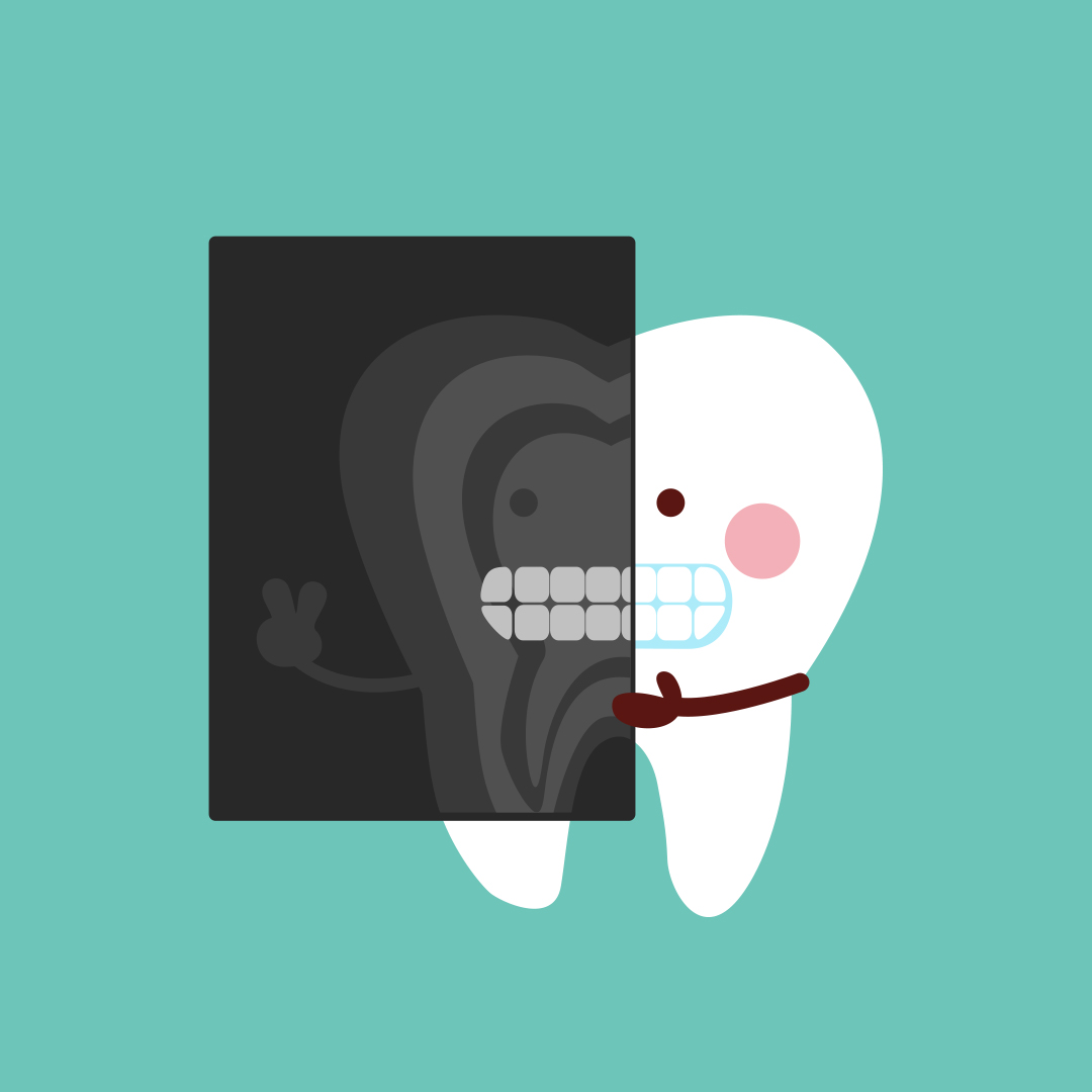 DENTAL X-RAYS: Myths and Benefits