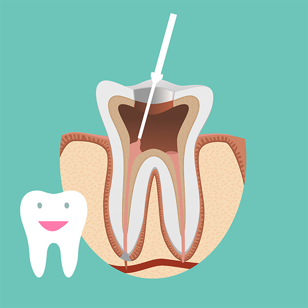 THE ROOT CANAL